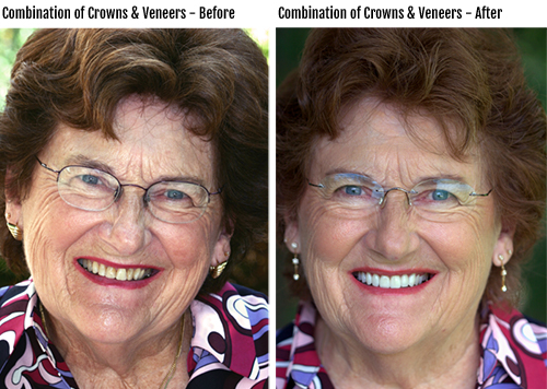 Combination of dental crowns and dental veneers before & after photo
